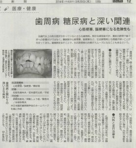 140320毎「歯周病糖尿病と深い関連」